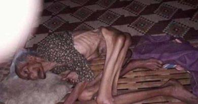 Dziesiątki tysięcy dzieci niezdolnych do zapewnienia sobie jedzenia, umiera.