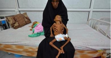 Jemen: Skala kryzysu humanitarnego przeraża!