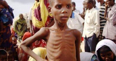 Dzieci w Sudanie Południowym cierpią z powodu niedożywienia. Możesz pomóc!